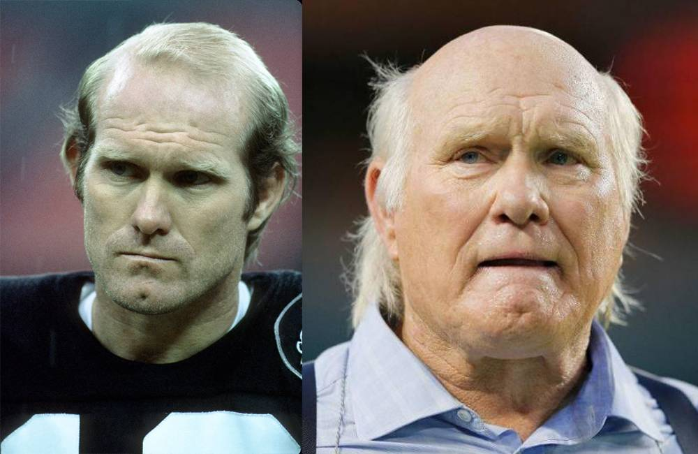 terry bradshaw side by side